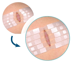 DynaClose Skin Expansion Strips